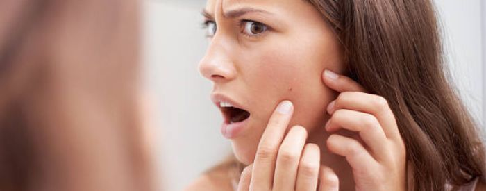 Intense Light Acne Treatment in Plymouth