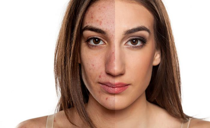 IPL Intense Pulsed Light Acne Treatment in Plymouth