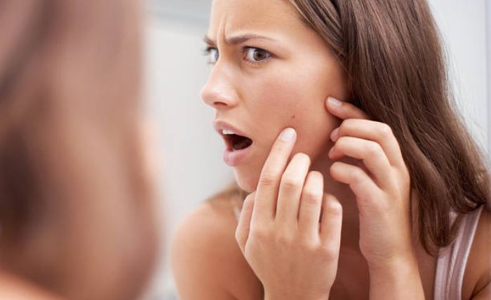 Intense Pulsed Light Acne Treatment in Plymouth