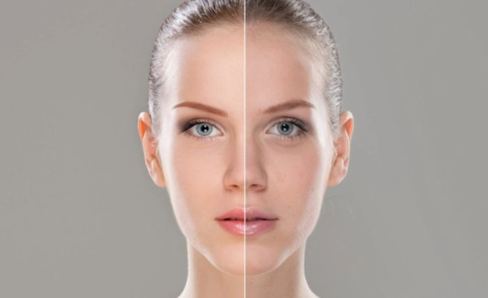 Laser Pigmentation Reduction in Plymouth