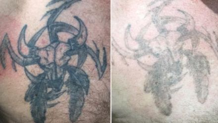 Laser Tattoo Removal in Plymouth