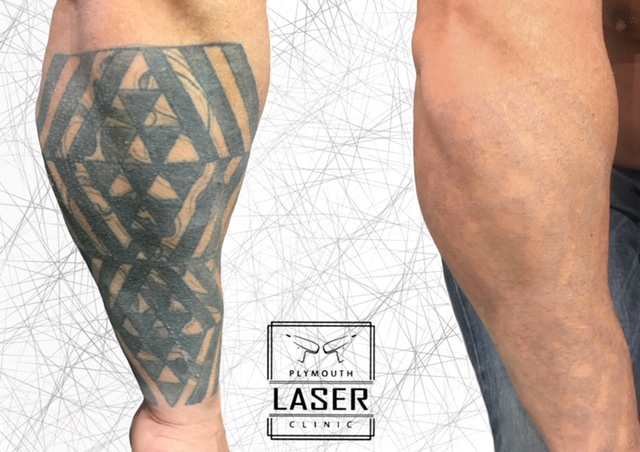 Forearm Tattoo Removal