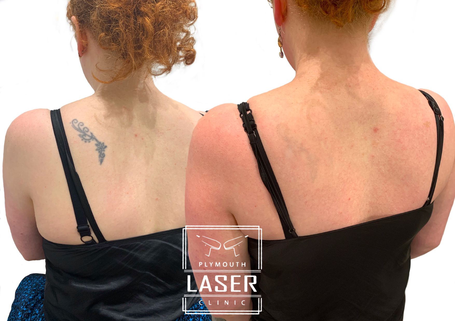 Laser Tattoo Removal in Devon